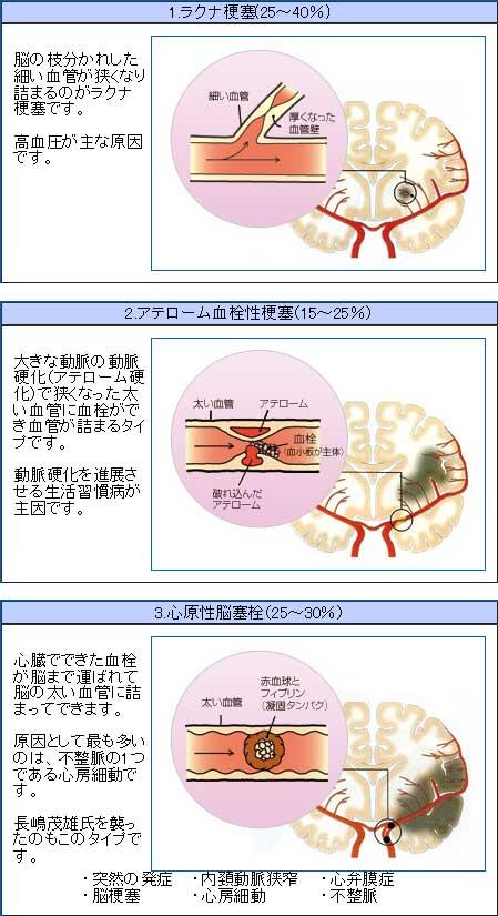 性 アテローム 梗塞 血栓 脳